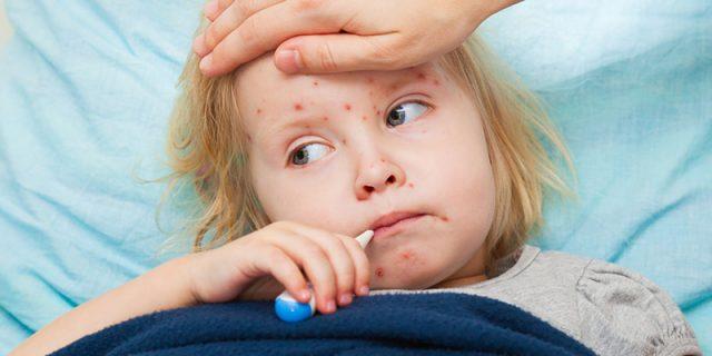 Varicella sintomi vaccino e cura