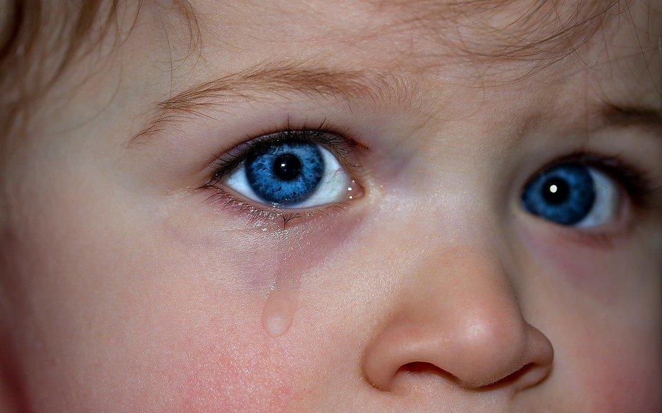 ermatite atopica nei bambini